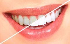 Smile photo teeth whitening